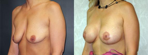 breastLeft46-3