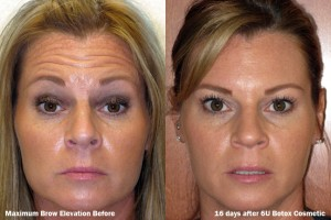dr-dembny-6U-Botox-Cosmetic-Forehead-Lines-patient-360
