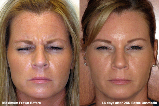 dr-dembny-25U-Botox-Cosmetic-Frown-Lines-patient-360