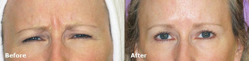 dr-dembny-20U-Botox-Frown-lines-patient-505