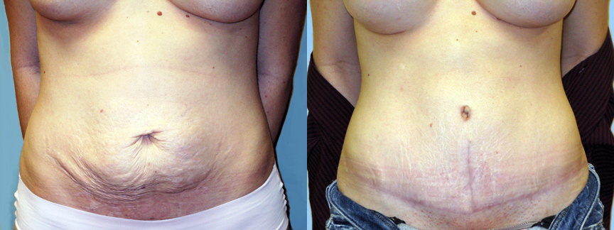 dr-dembny-abdominoplasty-tummy-tuck-patient-162-AP