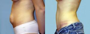 dr-dembny-abdominoplasty-tummy-tuck-patient-162-LLat