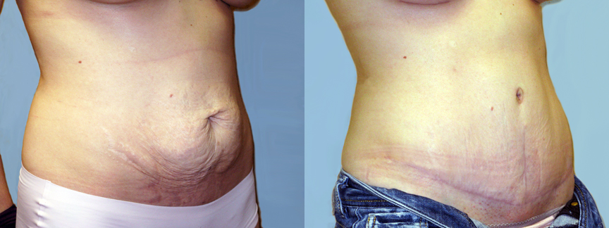 dr-dembny-abdominoplasty-tummy-tuck-patient-162-ROblq