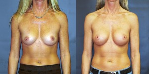 dr-dembny-breast-augmentation-natrelle-410-patient-700-AP