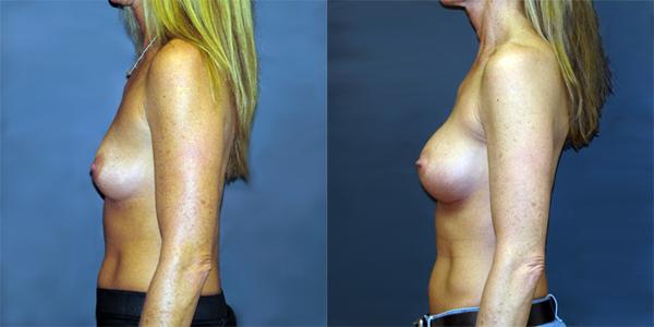 dr-dembny-breast-augmentation-natrelle-410-patient-700-LLat