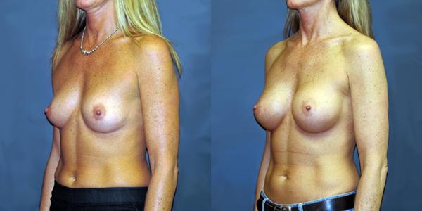 dr-dembny-breast-augmentation-natrelle-410-patient-700-LOblq