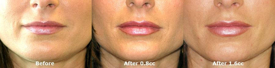 Juvederm Lip Enhancement – 215