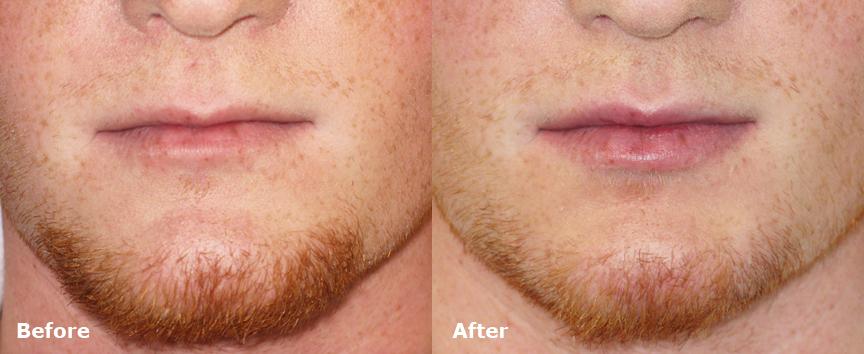 dr-dembny-juvederm-ultra-lip-enhancement-patient-590
