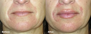dr-dembny-juvederm-lip-enhancement-patient-591