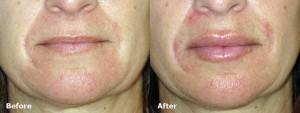 dr-dembny-juvederm-lip-enhancement-patient-591