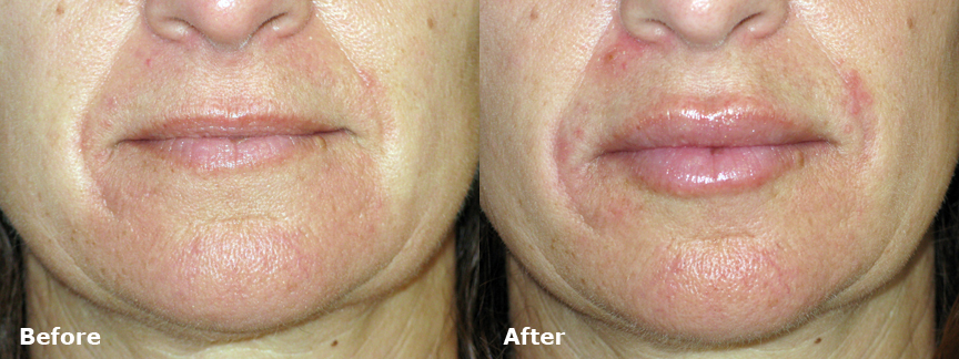 Juvederm Lip Enhancement – 591