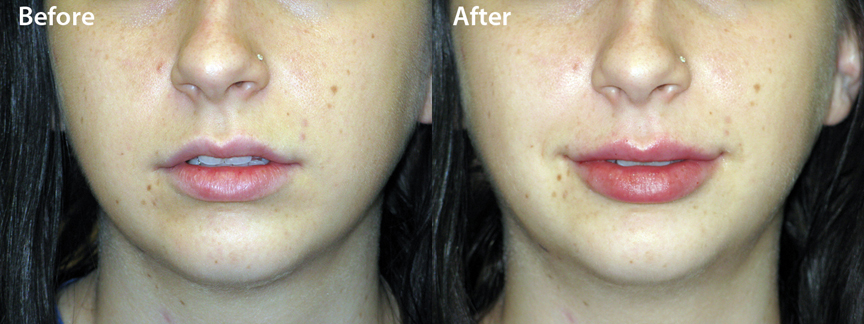 Juvederm Lip Enhancement – 601