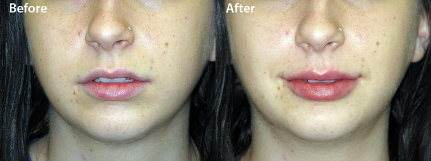 dr-dembny -juvederm-ultra-lip-enhancement-patient-601