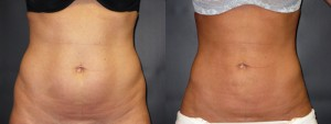 dr-dembny-liposuction-abdomen-flank-patient-29-AP