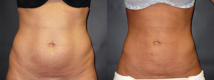 dr-dembny-liposuction-abdomen-flank-patient-29-AP