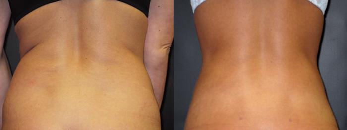 dr-dembny-liposuction-abdomen-flank-patient-29-Back