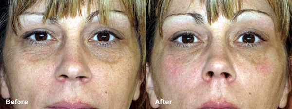 dr-dembny-restylane-lower-eyelid-patient-216-AP