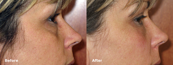 dr-dembny-restylane-lower-eyelid-patient-216-RLat