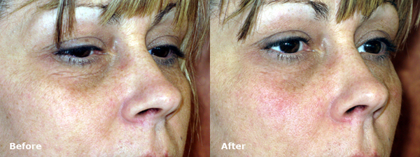 dr-dembny-restylane-lower-eyelid-patient-216-Roblq
