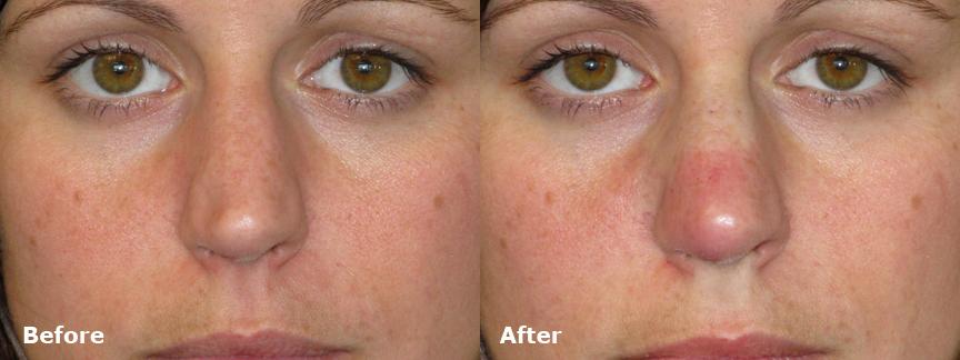 dr-dembny-restylane-patient-510-AP-Nose