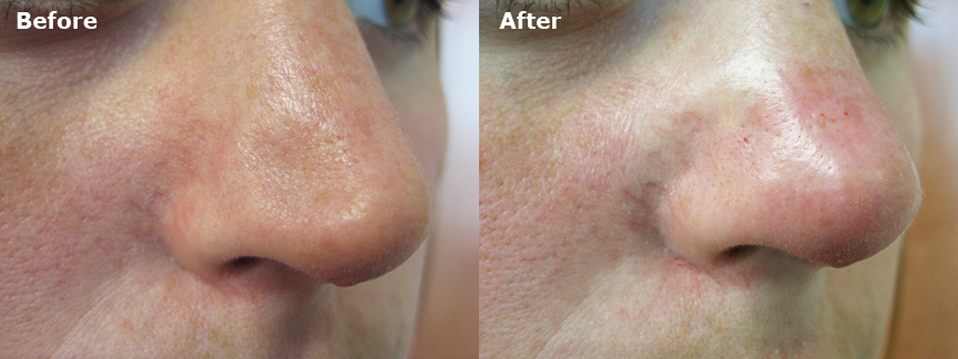 dr-dembny-restylane-patient-510-ROblq-Nose