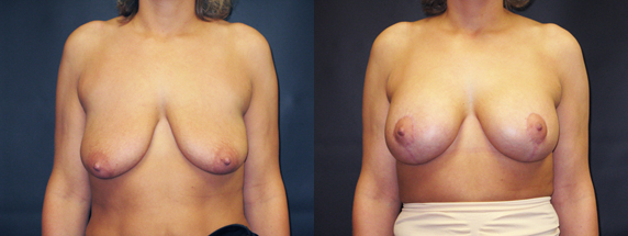 Drooping & Loss of Breast Fullness – 411
