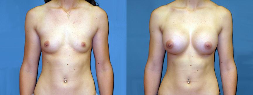dr-dembny-breast-augmentation-silicone-gel-patient-117-AP