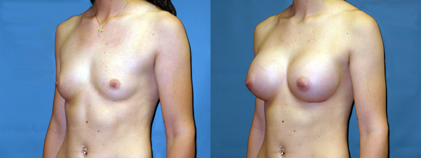 dr-dembny-breast-augmentation-117-LOblq