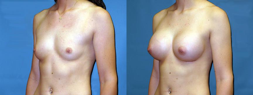 dr-dembny-breast-augmentation-silicone-gel-patient-117-LOblq
