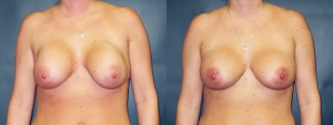 dr-dembny-breast-augmentation-revision-capsulectomy-for-capsular-contracture-patient-306-AP