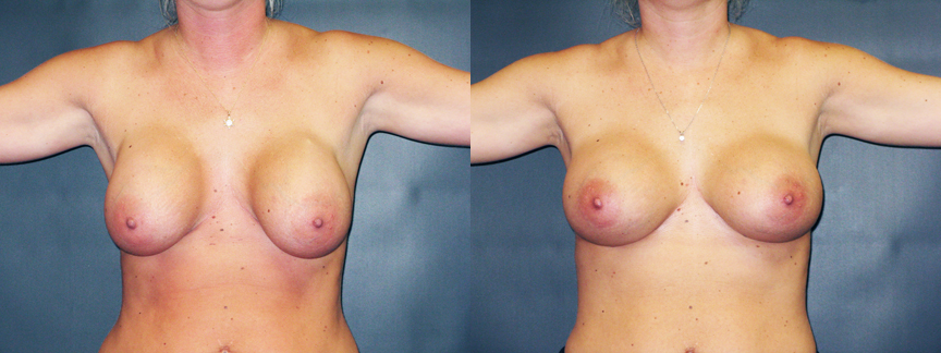 Breast Implant Contractures 88