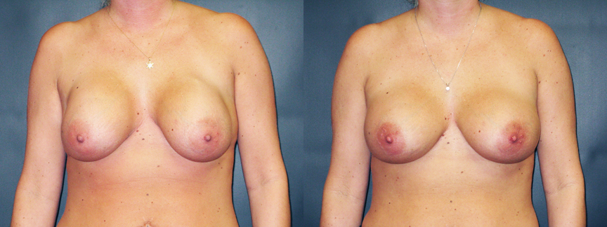 Breast Implant Contractures 82