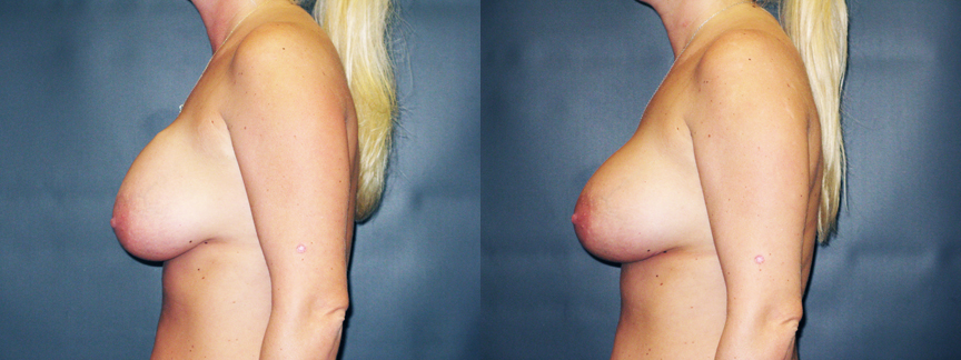 Breast Implant Contractures 17