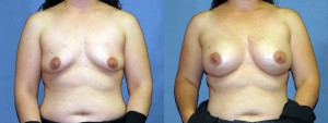 dr-dembny-breast-augmentation-silicone-gel-patient-668-AP