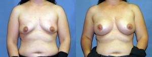 dr-dembny-breast-augmentation-silicone-gel-patient-668-AP