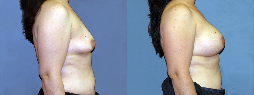 dr-dembny-breast-augmentation-patient-668-RLat