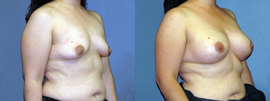 dr-dembny-breast-augmentation-patient-668-ROblq
