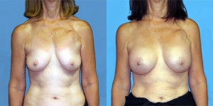 dr-dembny-breast-augmentation-silicone gel-patient-777-AP