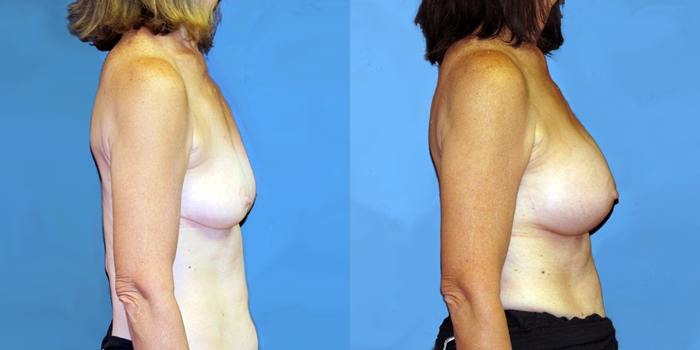 dr-dembny-breast-augmentation-silicone-gel-patient-777-RLat