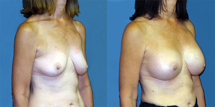 dr-dembny-breast-augmentation-silicone-gel-patient-777-ROblq