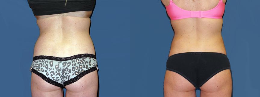 dr-dembny-liposuction-abdomen-flank-599-back