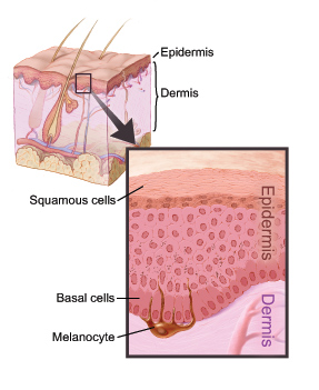 Epidermis- Dermis-layers-of-the-skin