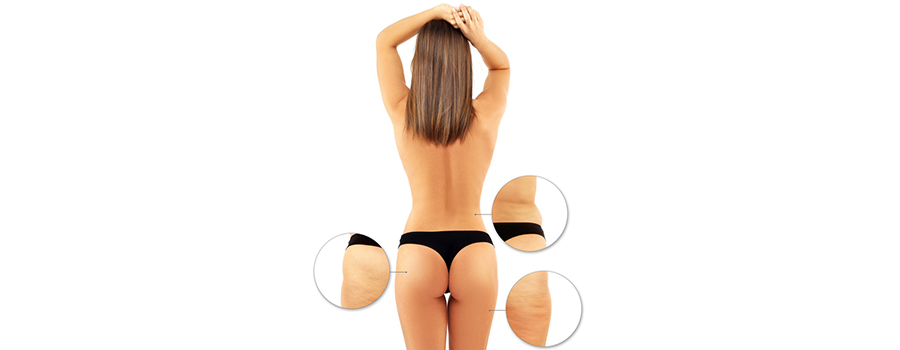 Liposuction-An Overview
