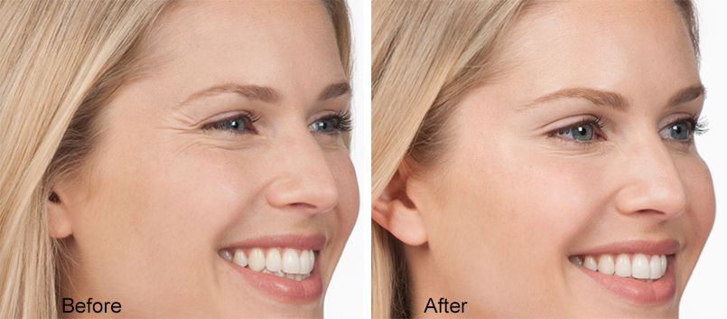 Botox-B&A-Crows-Feet-Dr-Dembny