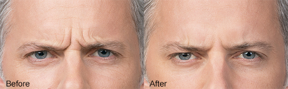 Botox-B&A-Frown-Lines-2-Dr-Dembny 563x175