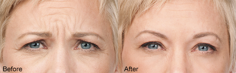 Botox-B&A-Frown-Lines-Dr-Dembny