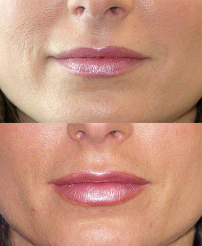Lip-enhancement-juvederm-dr-dembny