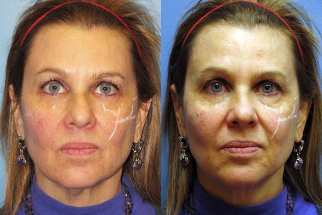 Split-Face-Voluma-Treatment-Dr-Dembny