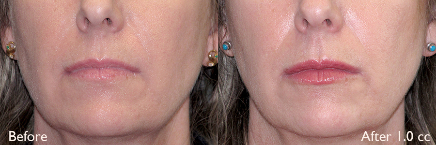 Before-After-Volbella-Lip-Enhancement-Dr-Dembny