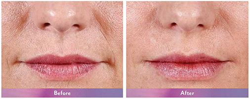 Before-After-Juvederm-Lip-Augmentation-Dr-Dembny